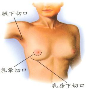 手术隆胸要多少钱