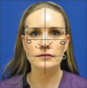 面部不对称的区域分析及其临床意义