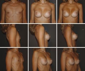 复合隆胸:使用假体和自体脂肪进行的软组织规划