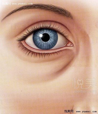 自体脂肪丰泪沟拭去衰老细节,找回年轻气质!