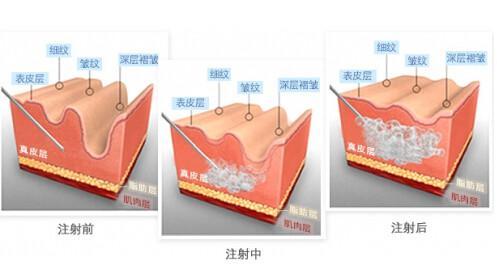 看玻尿酸如何完胜高级护肤品