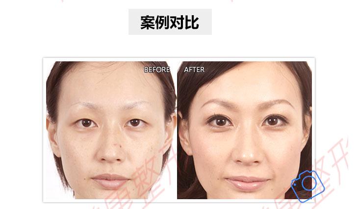 北京韩式三点双眼皮 韩式多点定位 微创双眼皮 灵动俏韵自然 悦美整形
