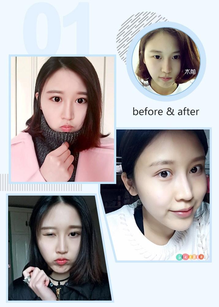 上海微创双眼皮 眼科主刀医生亲自治疗 微创切开双眼皮 痕迹轻微 效果