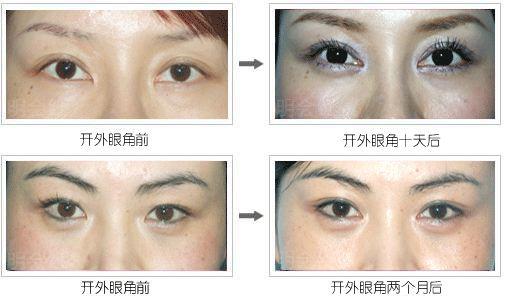 眼综合 北京切开双眼皮 贝拉芭比综合美目术 悦美整形